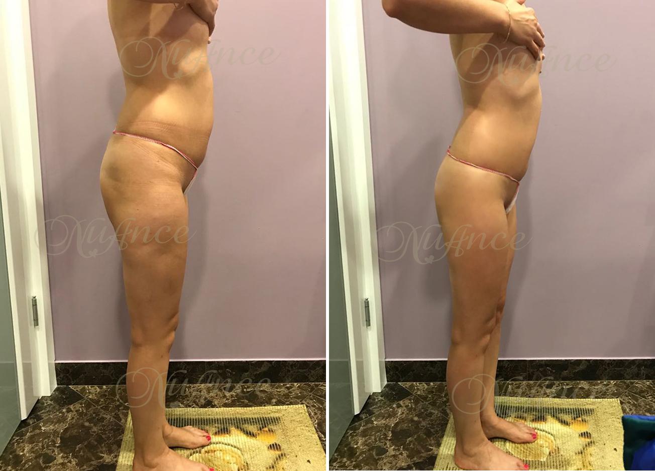 Результат Похудения При Обертывании. Обматывание пищевой пленкой и похудение с ее помощью в домашних условиях