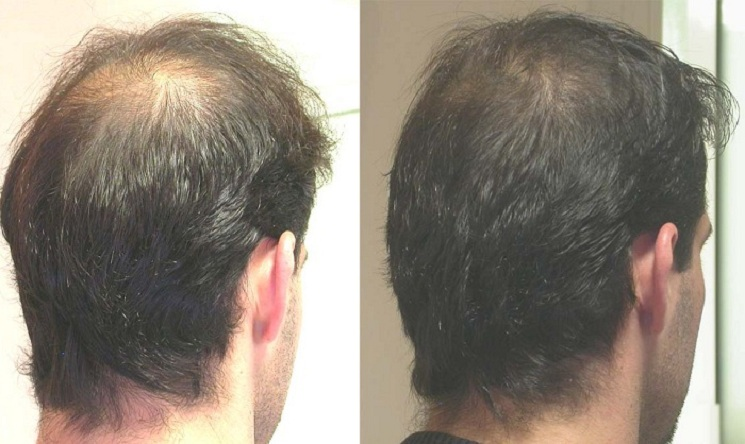 Эффект после мужской мезотерапии головы